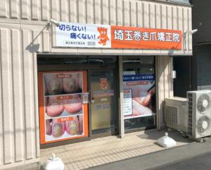 求人募集中の浦和の巻き爪専門院